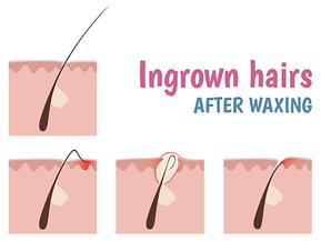 Ingrown hairs after waxing